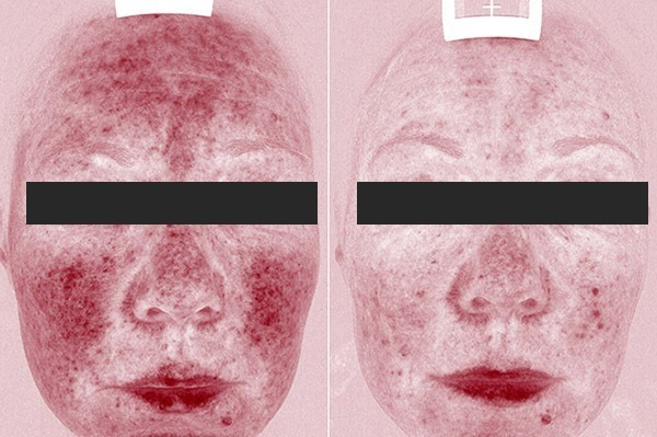 Pred in po zdravljenju rosacea s kremami in žilnim laserjem